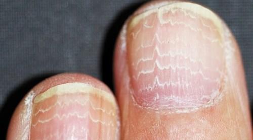 Resultado de imagem para Unhas secas e que quebram com facilidade doença