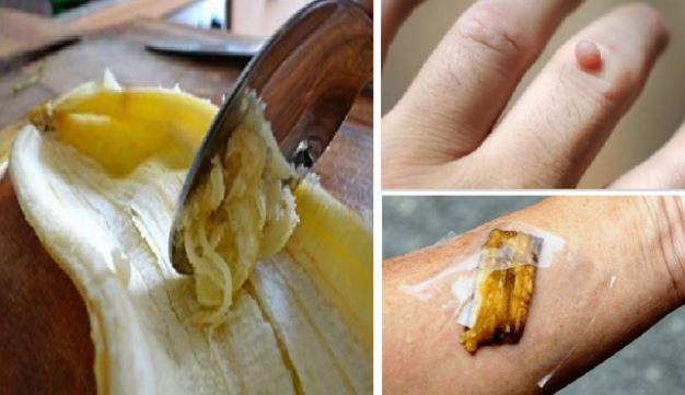 Resultado de imagem para casca banana esfregar mãos